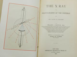 The X Ray: Or Photography of the Invisible and Its Value in Surgery